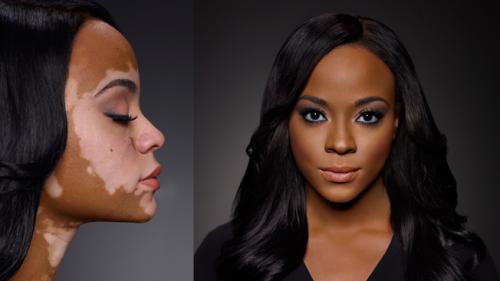 cheri-lindsay-vitiligo